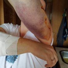 Neatsigauna po patirto šoko: agresyvus kaimynų šuo sukandžiojo moters rankas