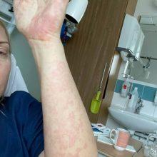 Koronavirusu persirgusiai Rūtai vėliau teko gultis į ligoninę: mano imunitetas pakvaišo