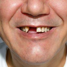 Prie kavinės vyrui išmušė dantis