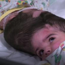 Medikai sėkmingai atskyrė Siamo dvynes: operacijos truko beveik 50 valandų