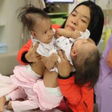 Medikai atliko Siamo dvynių atskyrimo operaciją