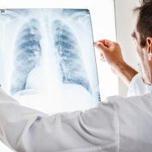 širdies plaučių sąveika sveikatos ir ligų srityse