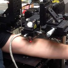 Atrado naują būdą kovoti su vėžiu: lazeris jau išbandytas su žmonėmis