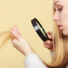 Suprastėjo plaukų ir nagų būklė: ką tai sako apie sveikatą?