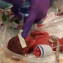 Išgyveno mažiausias pasaulyje gimęs kūdikis: naujagimis svėrė vos 245 gramus