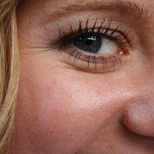 Mokslininkai teigia atradę baltymą, išsaugantį odos jaunystę