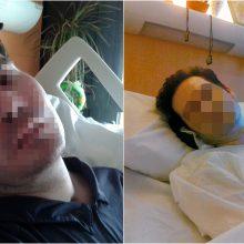 Mirė paralyžiuotas prancūzas: gydytojai išjungė gyvybės palaikymo sistemas
