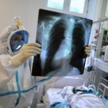 Ligoninėse nuo koronaviruso gydomi 85 žmonės, iš jų penki – reanimacijoje
