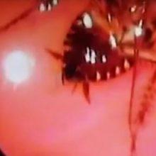 Iš indės nosies ištrauktas gyvas tarakonas