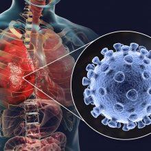 PSO atstovė: su koronavirusu reikės gyventi dar ne vieną mėnesį