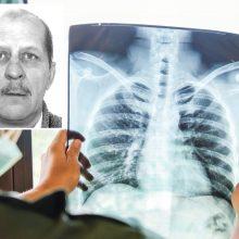 Ieškomas iš tuberkuliozės ligoninės pabėgęs pacientas