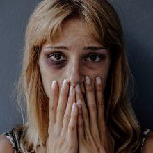 Girtas kaunietis įtūžį išliejo ant moters – spyrė jai į galvą, o vėliau bandė žalotis pats