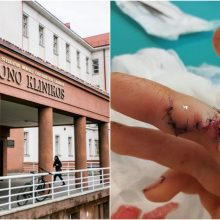 Kaunietę pašiurpino medikų aplaidumas: nepastebėjo atsivėrusios žaizdos