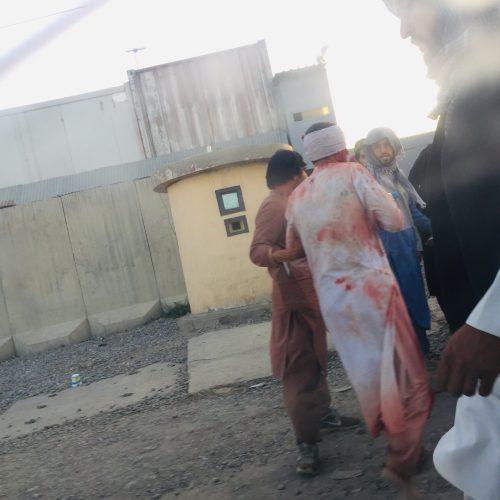 Prie Kabulo oro uosto driokstelėjo sprogimai