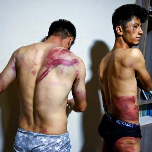 Paviešintos Talibano žiauriai sumuštų žurnalistų nuotraukos