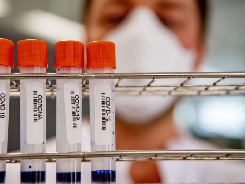 JAV infektologas: šalis vis dar murkdosi pirmoje koronaviruso bangoje