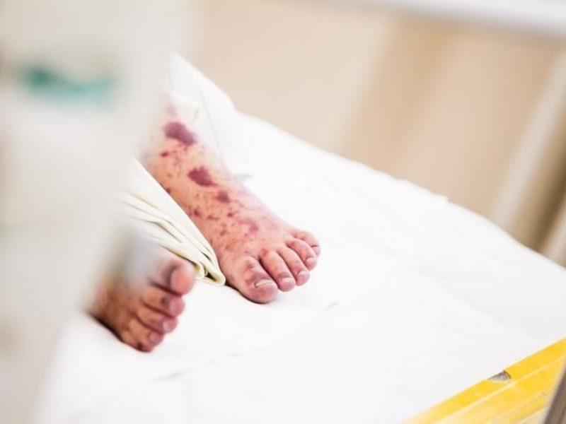 Per pirmąjį šių metų ketvirtį – 8 susirgimai meningokokine infekcija