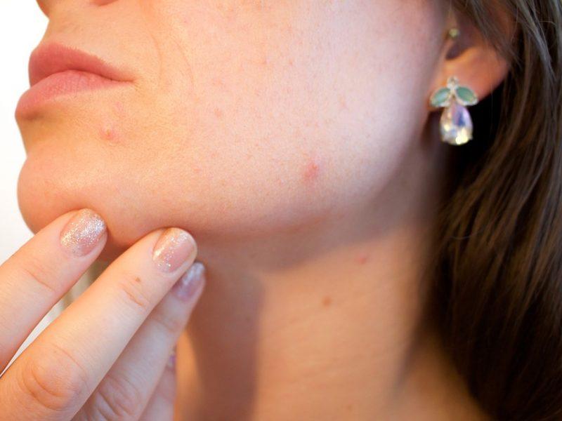 Septynios odos problemos, lengvai išsprendžiamos lazeriu