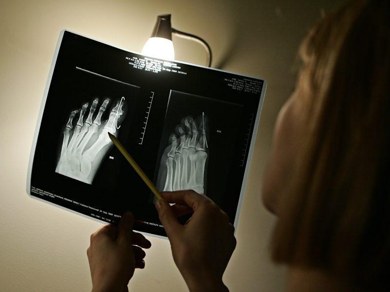 Osteoporozė kasmet sukelia milijonus kaulų lūžių