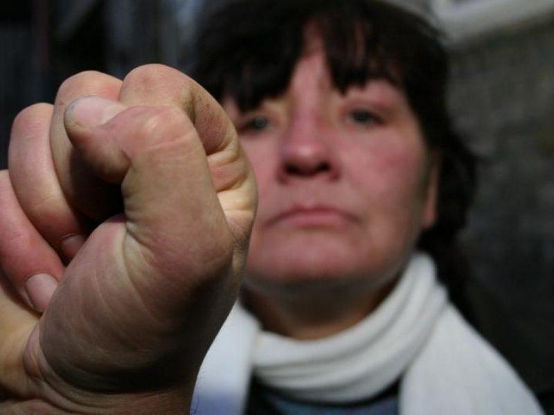 Rusijoje kasmet smurtą patiria 16 mln. moterų: sieks griežtesnių bausmių skriaudikams