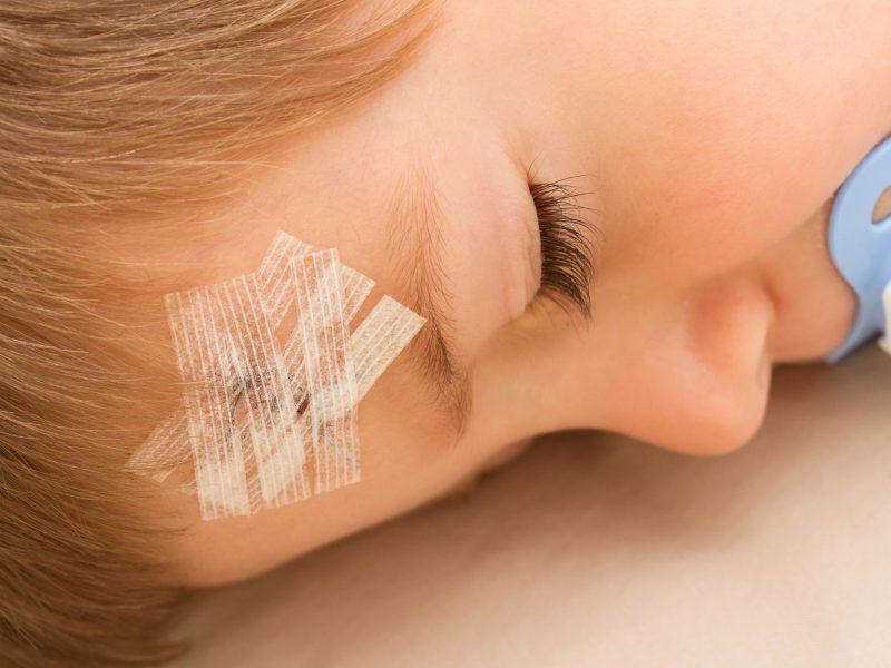Kauno ligoninėje – pernai gimusi mergaitė sumušta galva: mama tikina, kad vaikas atsitrenkė į stalą