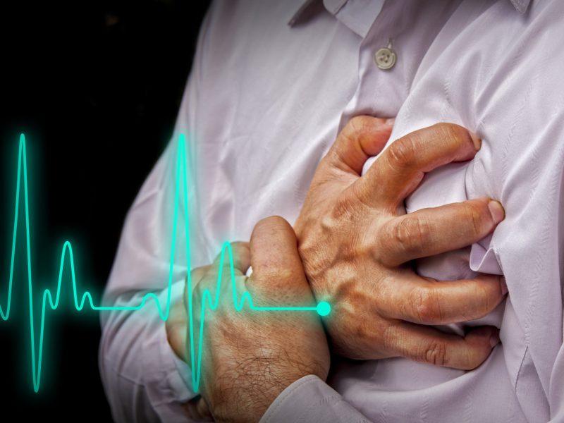 Slaugos planas po miokardo infarkto